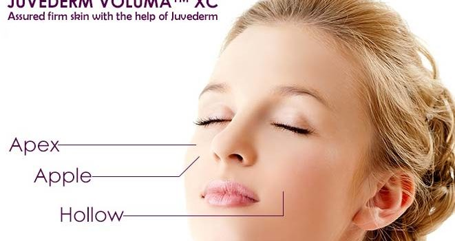 Assured firm skin with the help of Juvederm
